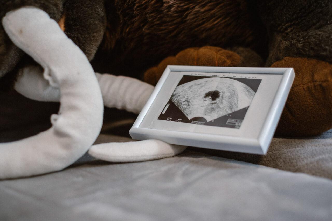 zdjęcia ciążowe w domu - USG